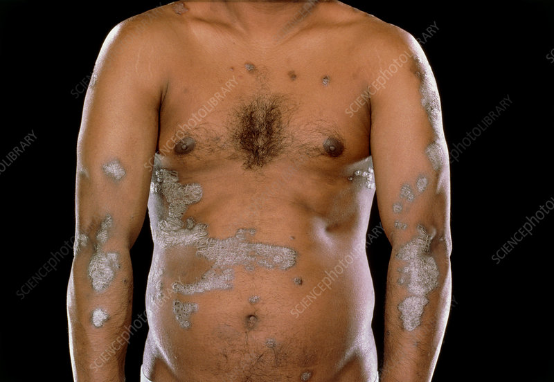 Extensive psoriasis on a man's arms & body