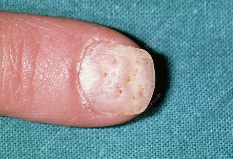 Psoriasis: pitting of a fingernail