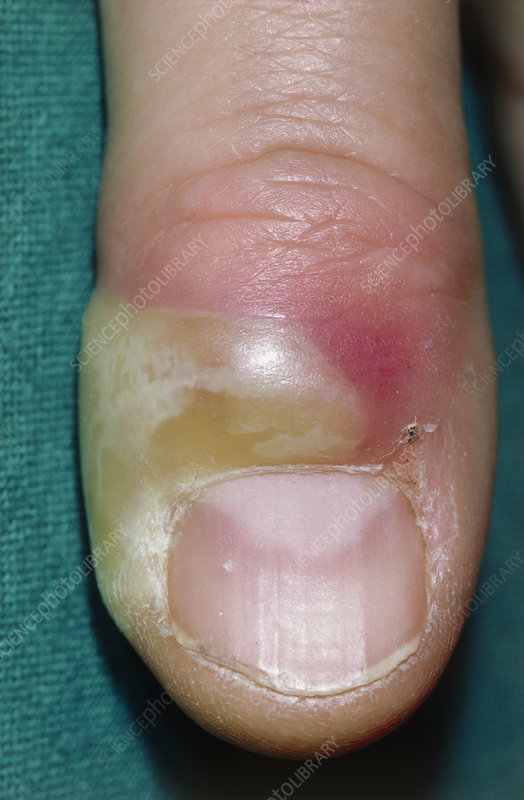Acute paronychia on finger