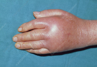 Hand affected by pseudogout