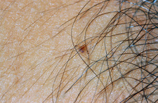 Pubic louse clining to human hair