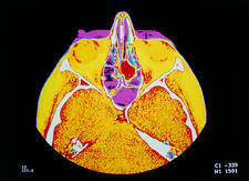 False-colour CT scan of a head showing nasal polyp