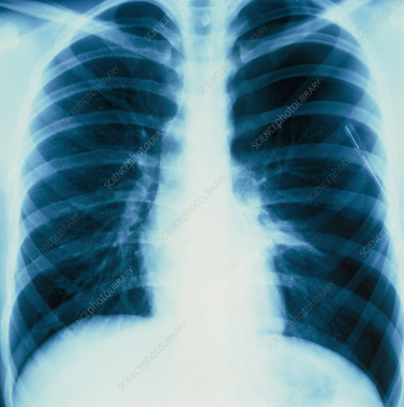 X-ray showing a lung affected by pneumothorax