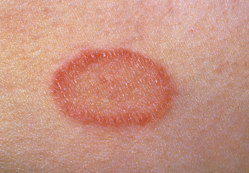 Pityriais rosea: close-up of a single lesion