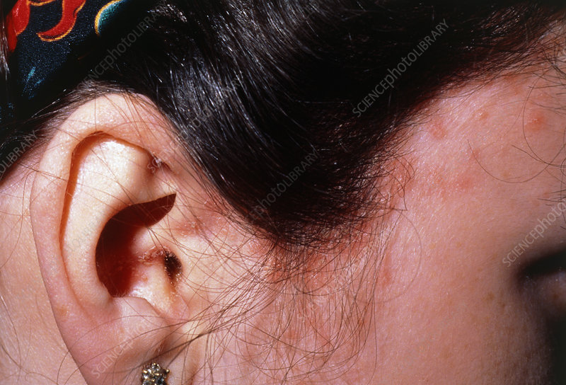 Guttate psoriasis lesions on side of head