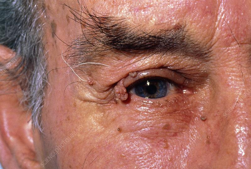 Papillomata around the eyes