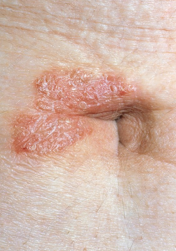 Psoriasis affecting the navel (umbilicus)