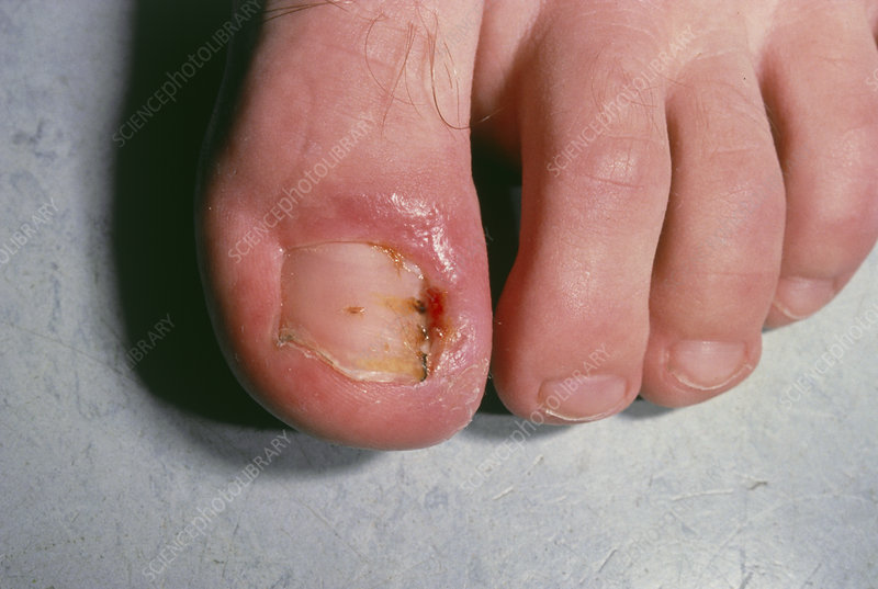 Close up: ingrowing big toenail with paronychia