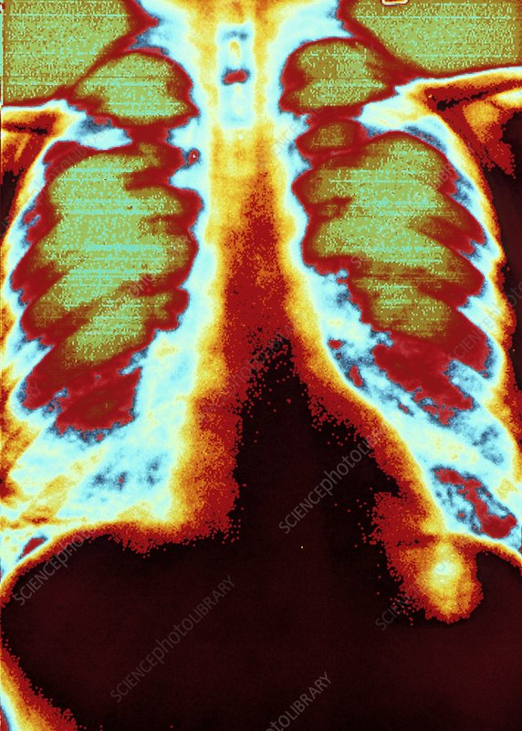 Digitised col. X-ray showing lungs with pneumonia