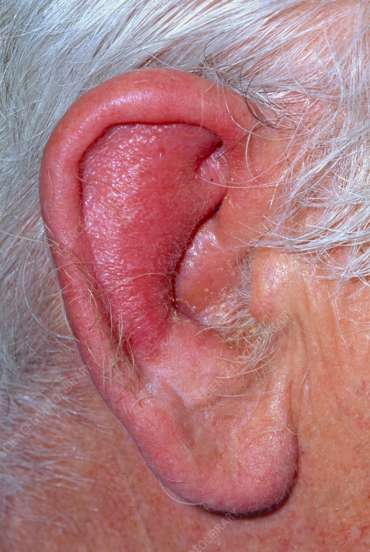 Inflamed ear of elderly man with perichondritis