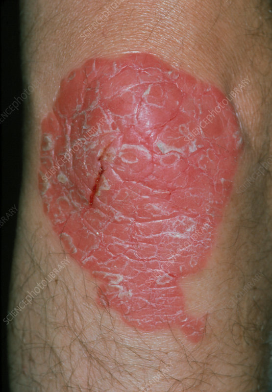 Psoriasis on the skin of the knee