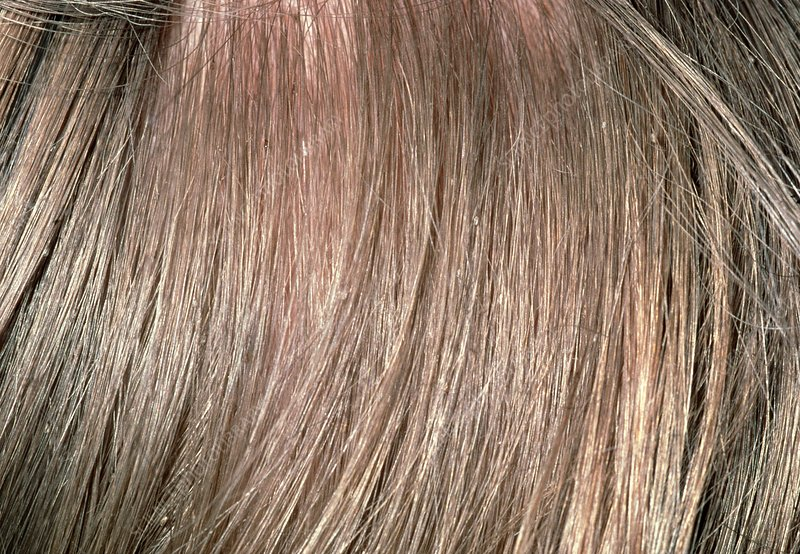 Lice Eggs On Blonde Hair Best Blondehair 2018