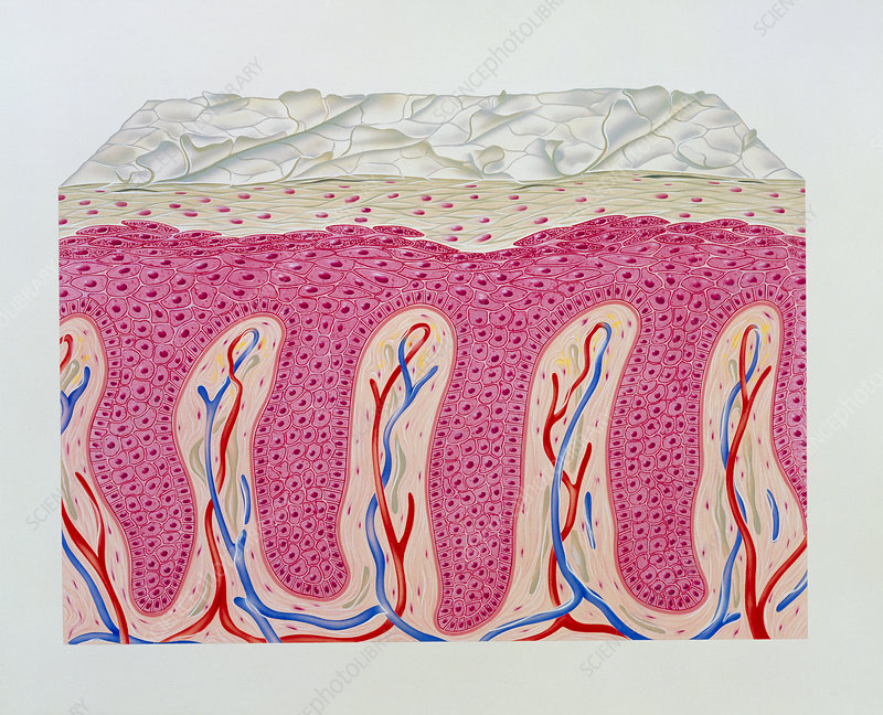 Artwork of psoriasis of skin epidermis in section