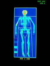 Paget's disease, coloured bone scan