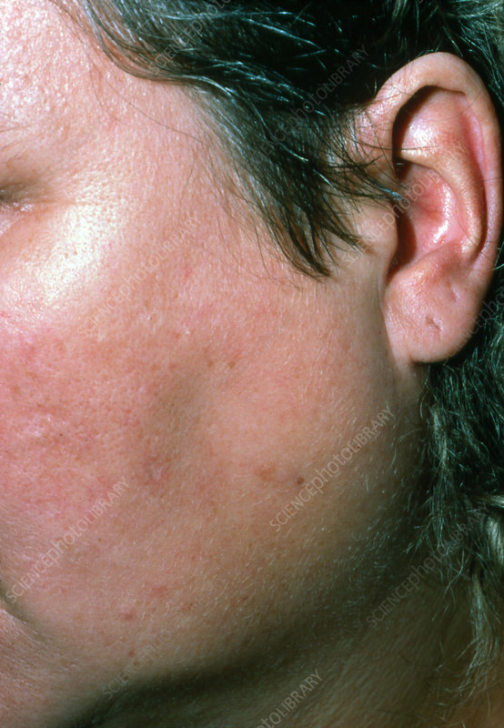 Parotid swelling due to blocked salivary duct