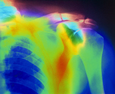 X-ray of a fractured clavicle in Paget's disease