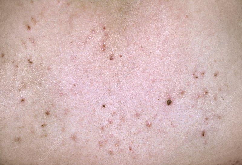 Pityriasis lichenoides spots on skin
