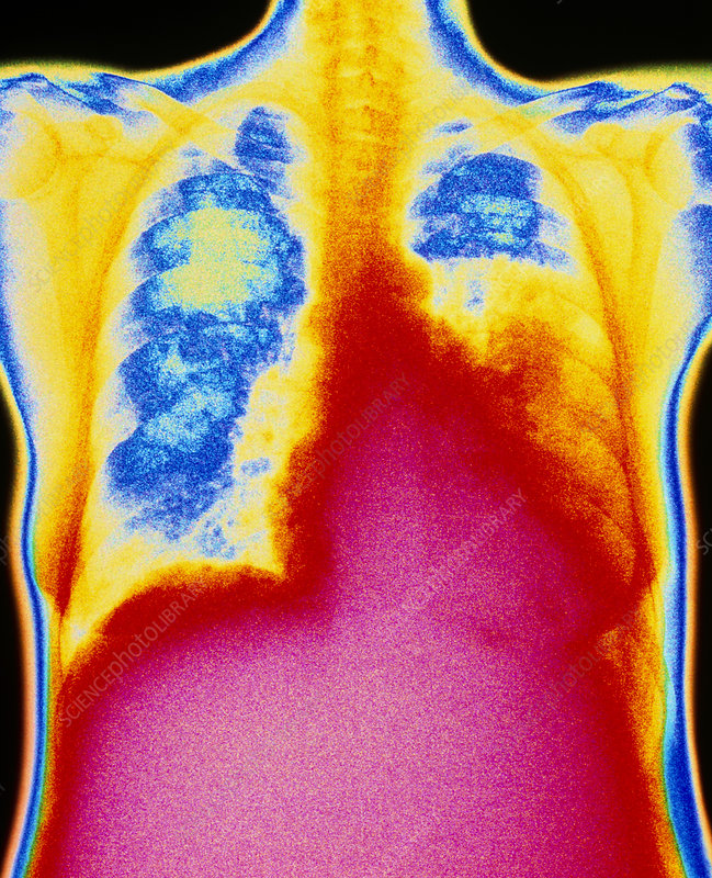 Coloured chest X-ray showing lobar pneumonia