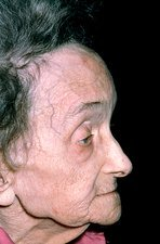 Abnormal prominent forehead due to Paget's disease