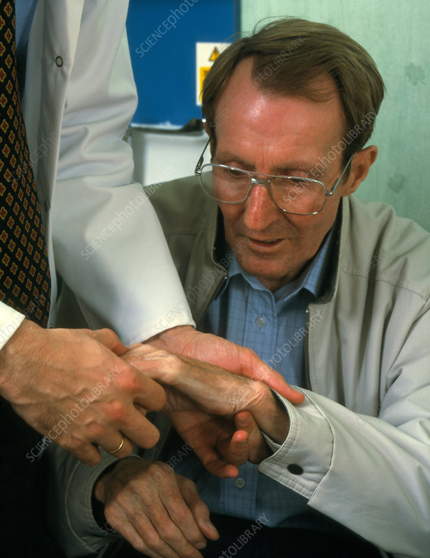 Hand examination of man with Parkinson's disease