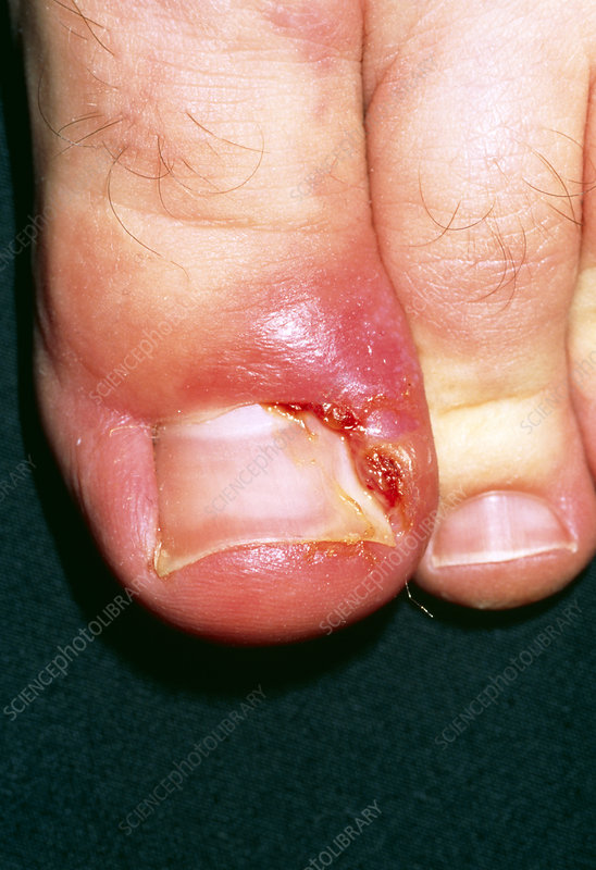 Close-up of paronychia due to an ingrowing toenail
