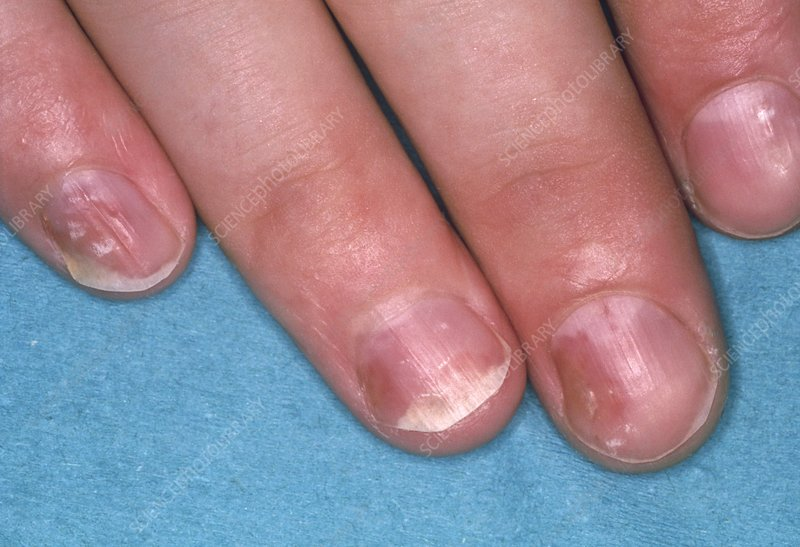 Close of psoriasis causing pitting of fingernails - Stock Image ...