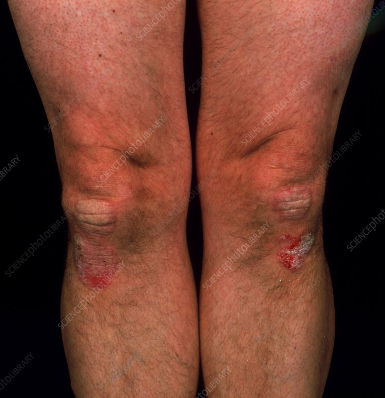Psoriasis on the skin of a person's knee