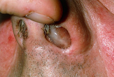 View of nasal polyp in an adult