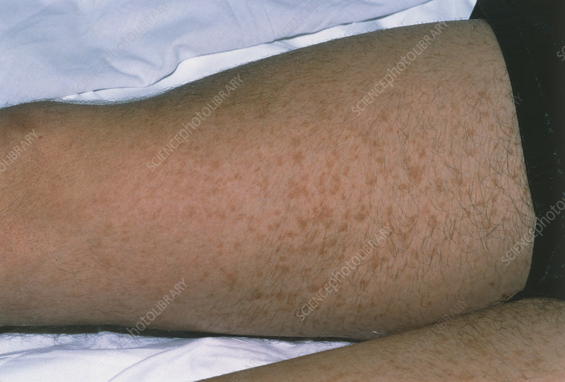 Henoch Schonlein purpura rash on a man's legs