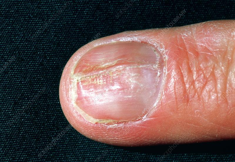 Psoriasis affecting the fingernail