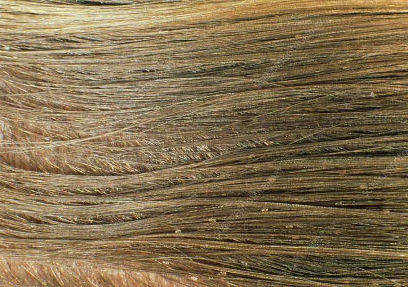Head louse eggs in human hair