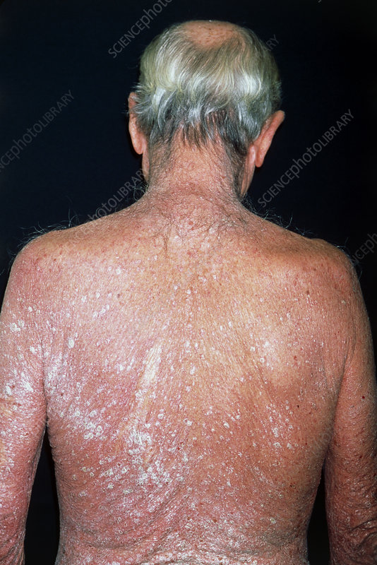 Psoriasis on the back of a 63 year old man