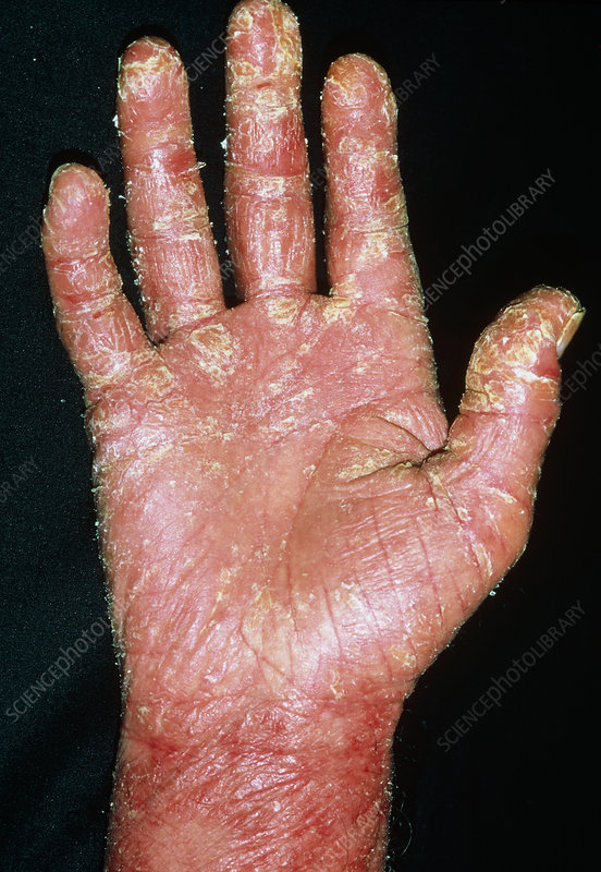 Psoriasis on the hand of a 63 year old man