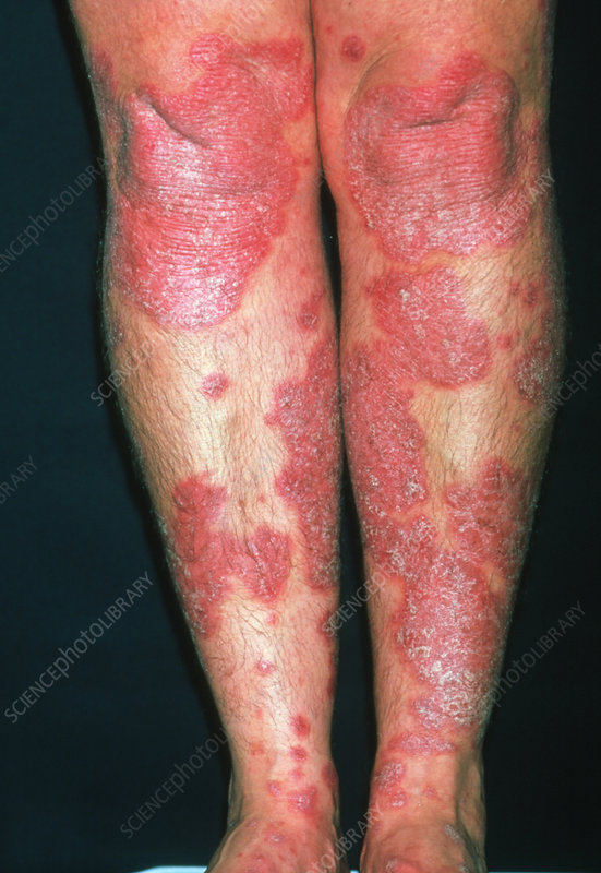 Psoriasis on the leg of a 34 year old woman