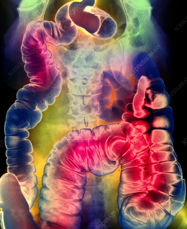Coloured X-ray of the abdomen showing proctitis