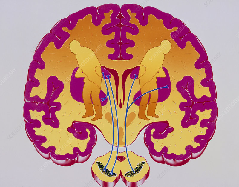 Artwork of brain depicting Parkinson's disease - Stock Image - M240/0317 -  Science Photo Library