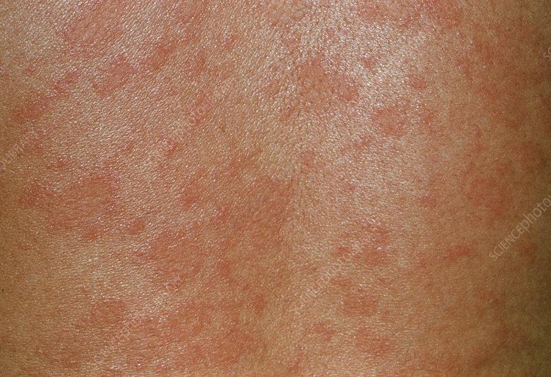 Pityriasis rosea skin rash