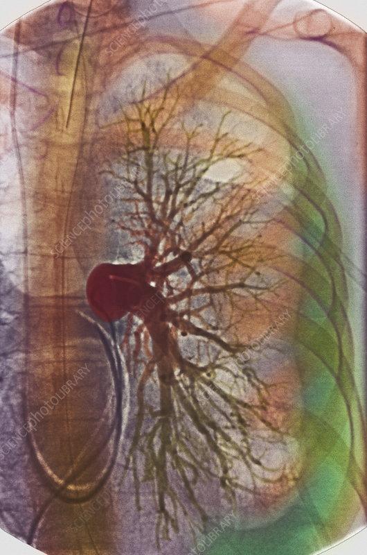 Pleural effusion, X-ray