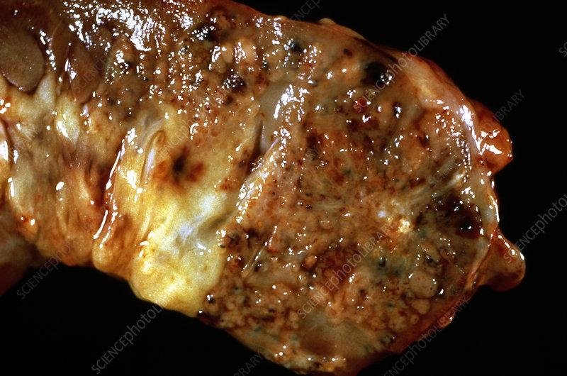 Acute pancreatitis - Stock Image M240/0384 - Science Photo ...  Acute pancreati...