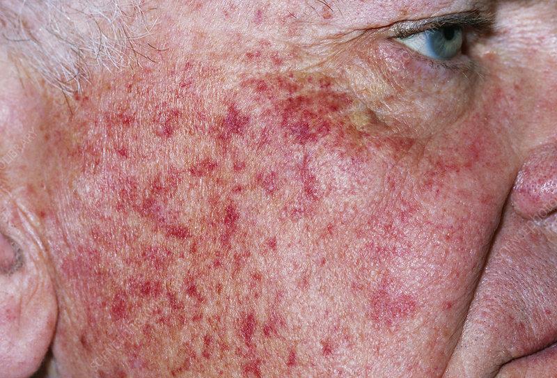 Petechial rash