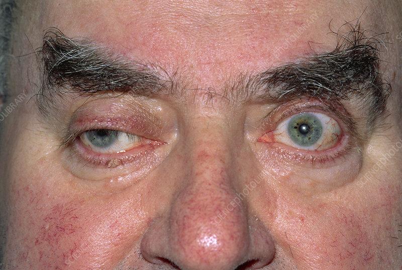 Facial palsy in diabetes