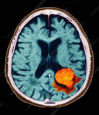 Brain lesion, MRI scan