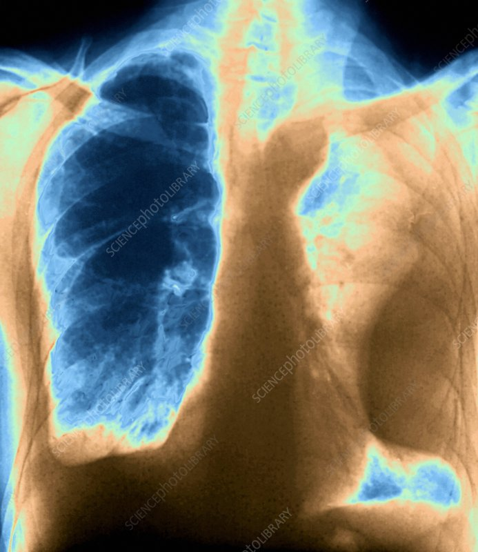Pleurisy of the lungs, X-ray