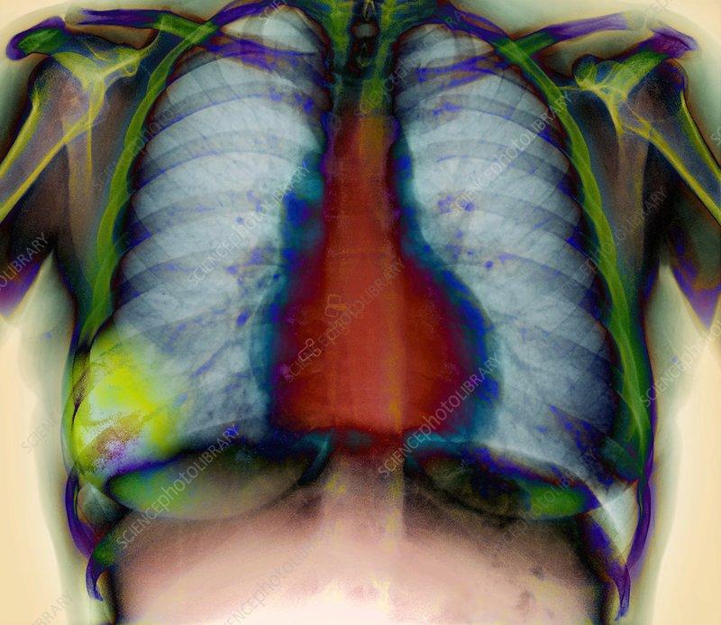 Pneumonia, X-ray