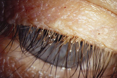 Lice on eyelashes