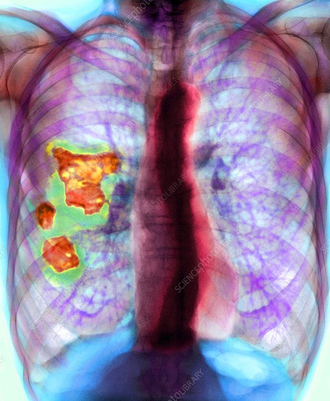 Pleural plaque, X-ray