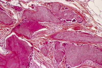 pilomatricoma - Genetics Home Reference