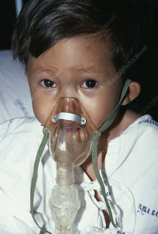 Secondary pneumonia
