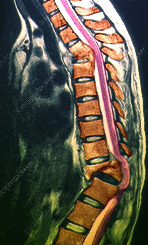 Pott's disease, MRI