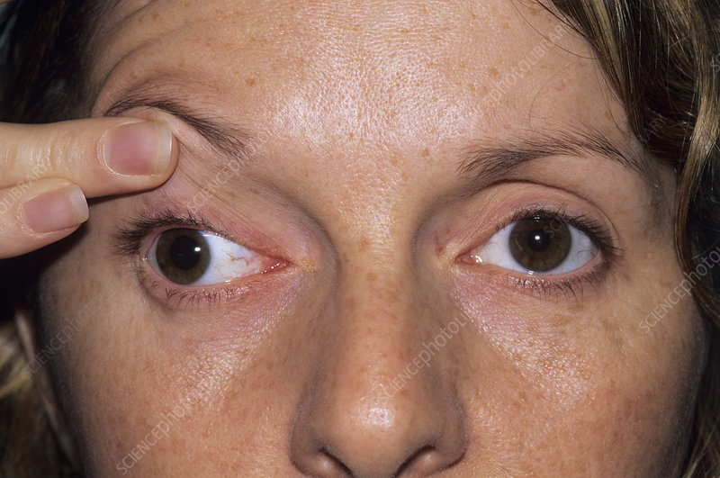 Oculomotor palsy in a woman's face